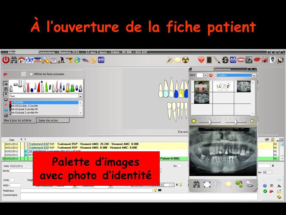 À l'ouverture de la fiche patient Palette d'images avec photo d'identité