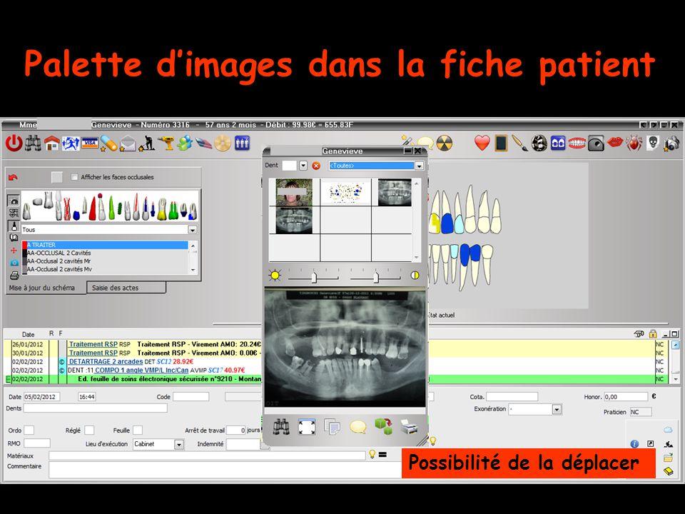 Palette d'images dans la fiche patient Possibilité de la déplacer