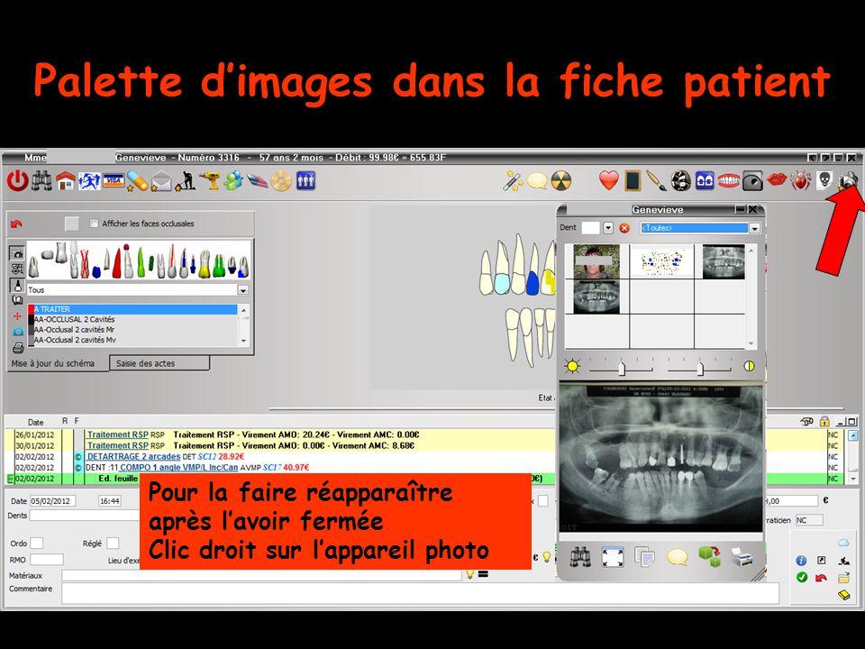Palette d'images dans la fiche patient Pour la faire réapparaître après l'avoir fermée Clic droit sur l'appareil photo