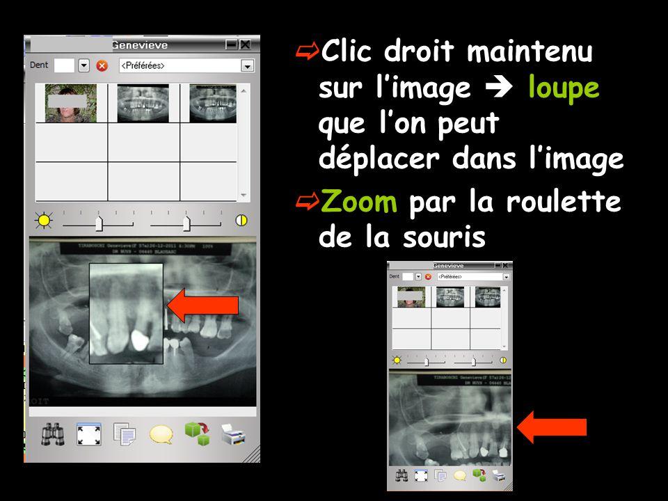 Clic droit maintenu sur l'image  loupe que l'on peut déplacer dans l'image  Zoom par la roulette de la souris