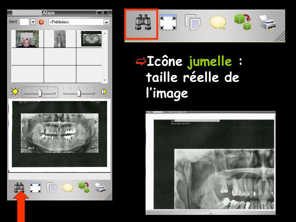 Icône jumelle : taille réelle de l'image