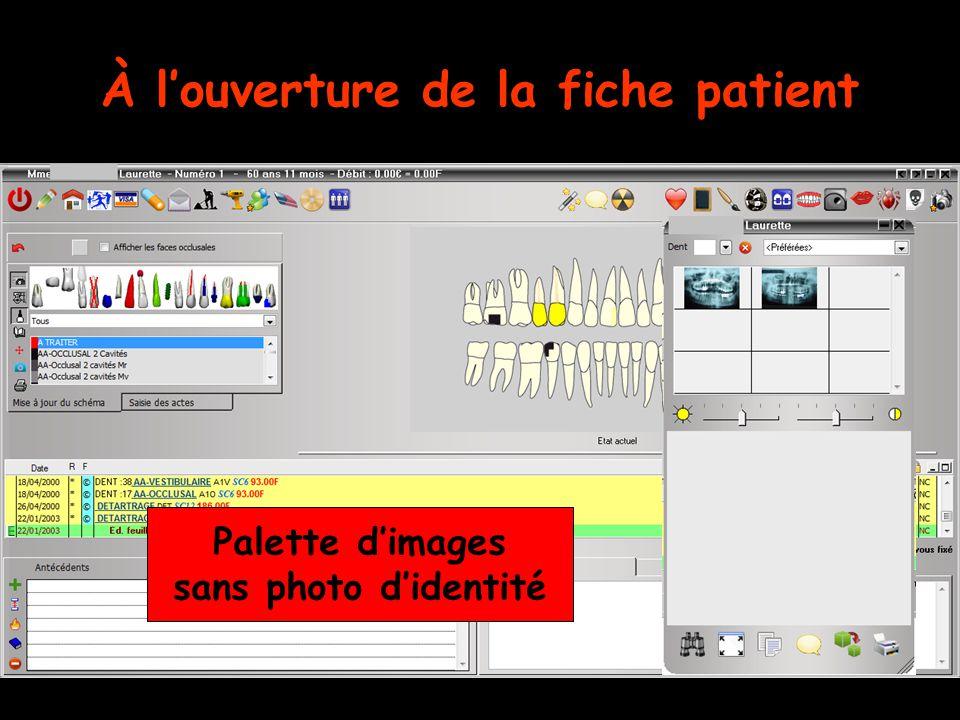 Dans Outils – Profils utilisateurs  Si la case Utiliser la palette d'images est cochée  Si la case Afficher la photo d'identité à l'ouverture du dossier est cochée Photos