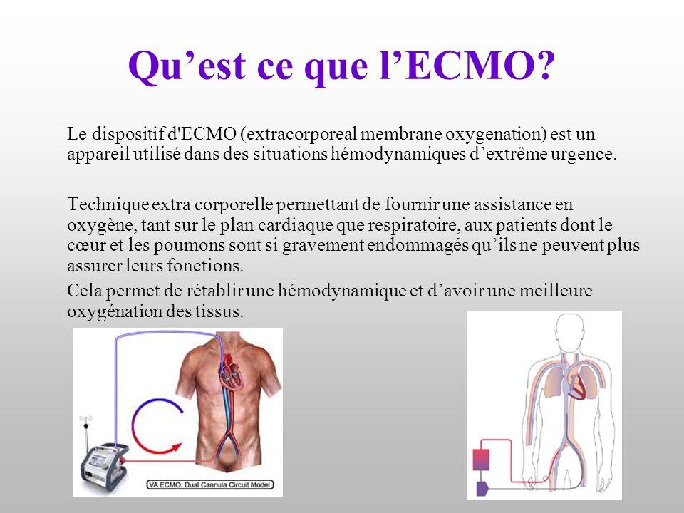 Qu'est ce que l'ECMO? Le dispositif d'ECMO (extracorporeal membrane oxygenation) est un appareil utilisé dans des situations hémodynamiques d'extrême