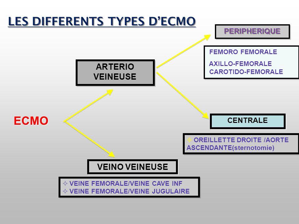 PERIPHERIQUEPERIPHERIQUE FEMORO FEMORALE AXILLO-FEMORALE CAROTIDO-FEMORALE FEMORO FEMORALE AXILLO-FEMORALE CAROTIDO-FEMORALE CENTRALE  OREILLETTE DRO