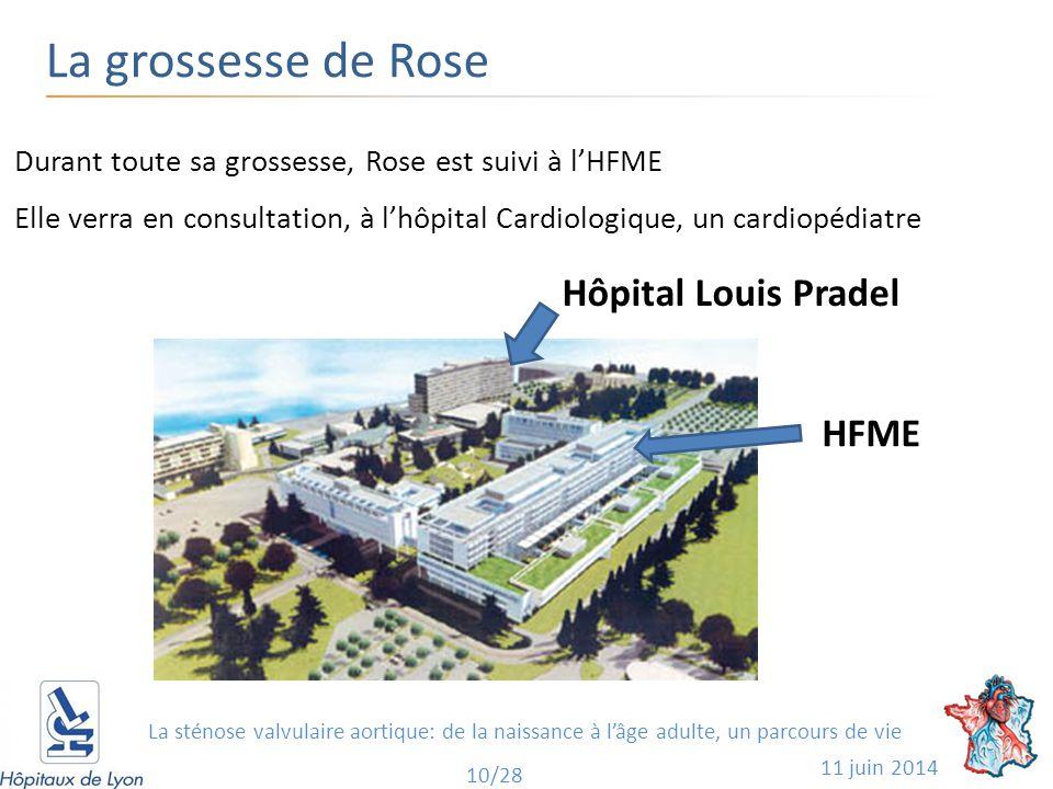 La grossesse de Rose 11 juin 2014 10/28 Durant toute sa grossesse, Rose est suivi à l'HFME Elle verra en consultation, à l'hôpital Cardiologique, un cardiopédiatre HFME Hôpital Louis Pradel La sténose valvulaire aortique: de la naissance à l'âge adulte, un parcours de vie
