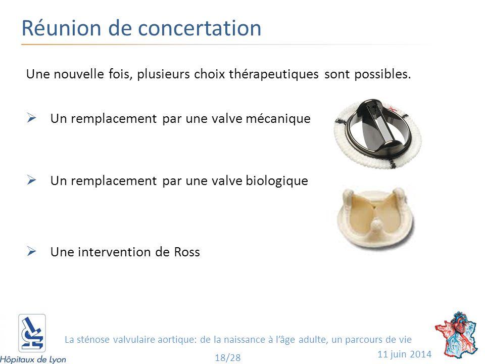 Réunion de concertation 11 juin 2014 18/28 Une nouvelle fois, plusieurs choix thérapeutiques sont possibles.  Un remplacement par une valve mécanique