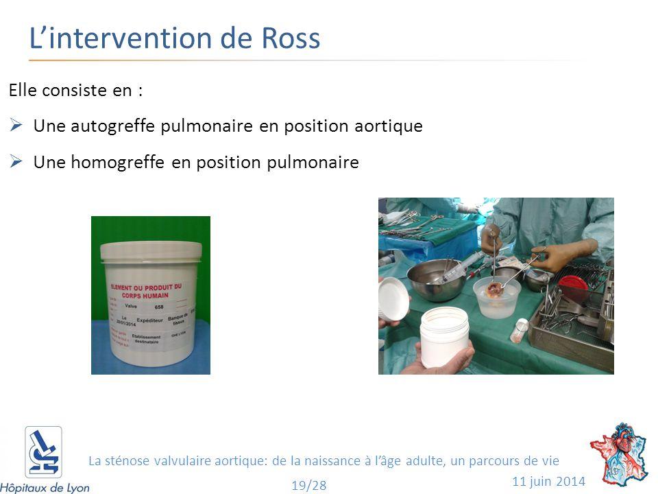 L'intervention de Ross 11 juin 2014 19 19/28 Elle consiste en :  Une autogreffe pulmonaire en position aortique  Une homogreffe en position pulmonaire La sténose valvulaire aortique: de la naissance à l'âge adulte, un parcours de vie