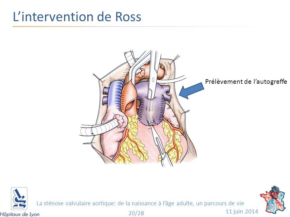 L'intervention de Ross 11 juin 2014 Prélèvement de l'autogreffe 20 20/28 La sténose valvulaire aortique: de la naissance à l'âge adulte, un parcours de vie
