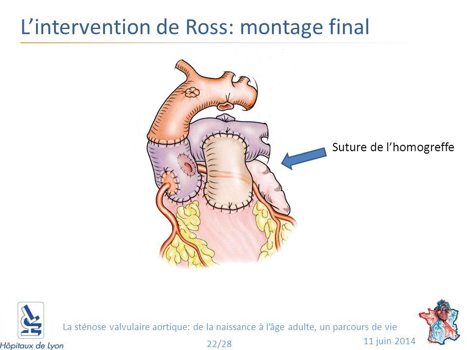 L'intervention de Ross: montage final 11 juin 2014 22 22/28 Suture de l'homogreffe La sténose valvulaire aortique: de la naissance à l'âge adulte, un parcours de vie
