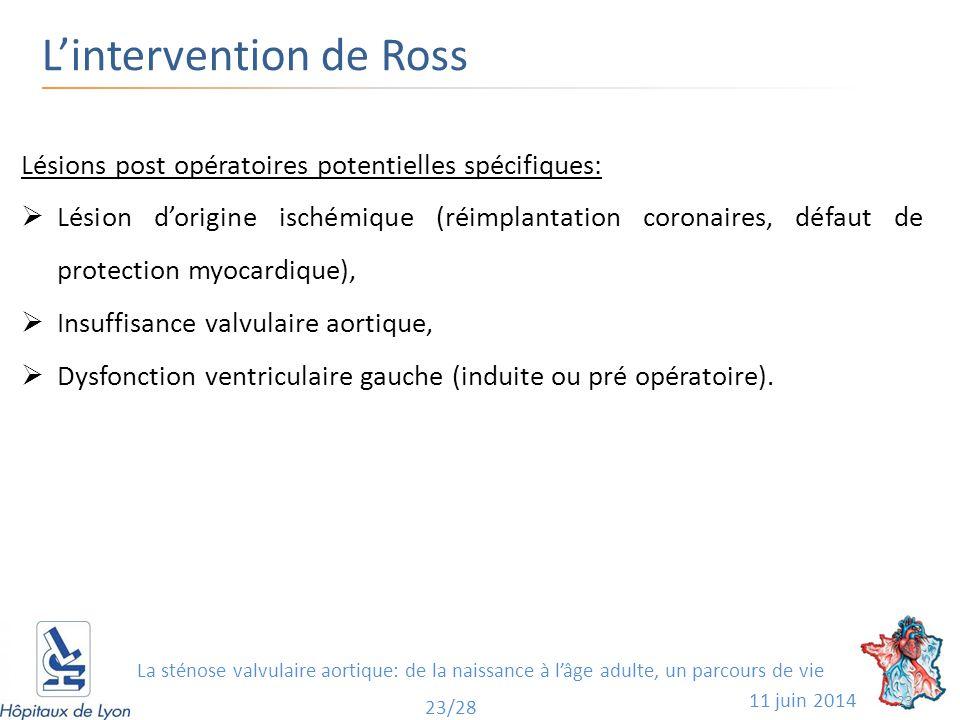 L'intervention de Ross 11 juin 2014 23 23/28 Lésions post opératoires potentielles spécifiques:  Lésion d'origine ischémique (réimplantation coronair