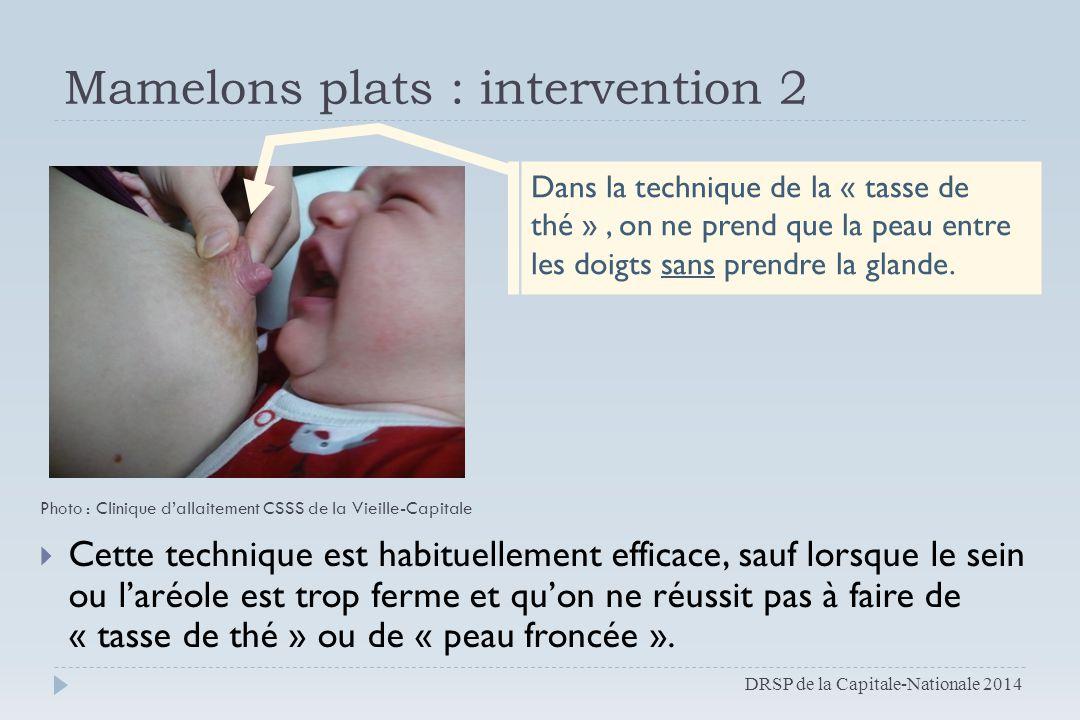 Mamelons plats : intervention 2  Cette technique est habituellement efficace, sauf lorsque le sein ou l'aréole est trop ferme et qu'on ne réussit pas
