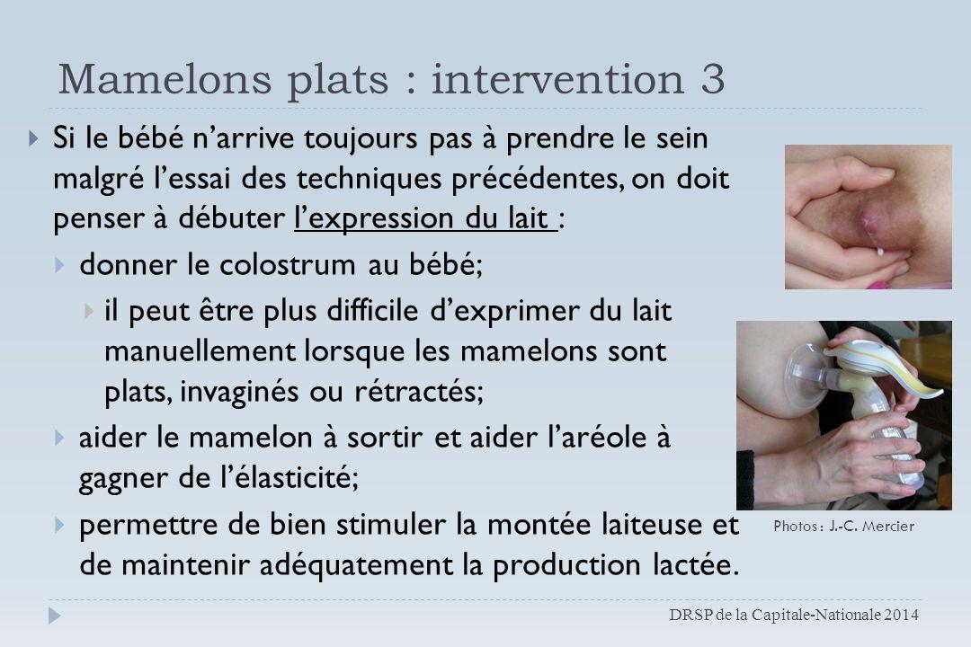 Mamelons plats : intervention 3  Si le bébé n'arrive toujours pas à prendre le sein malgré l'essai des techniques précédentes, on doit penser à début