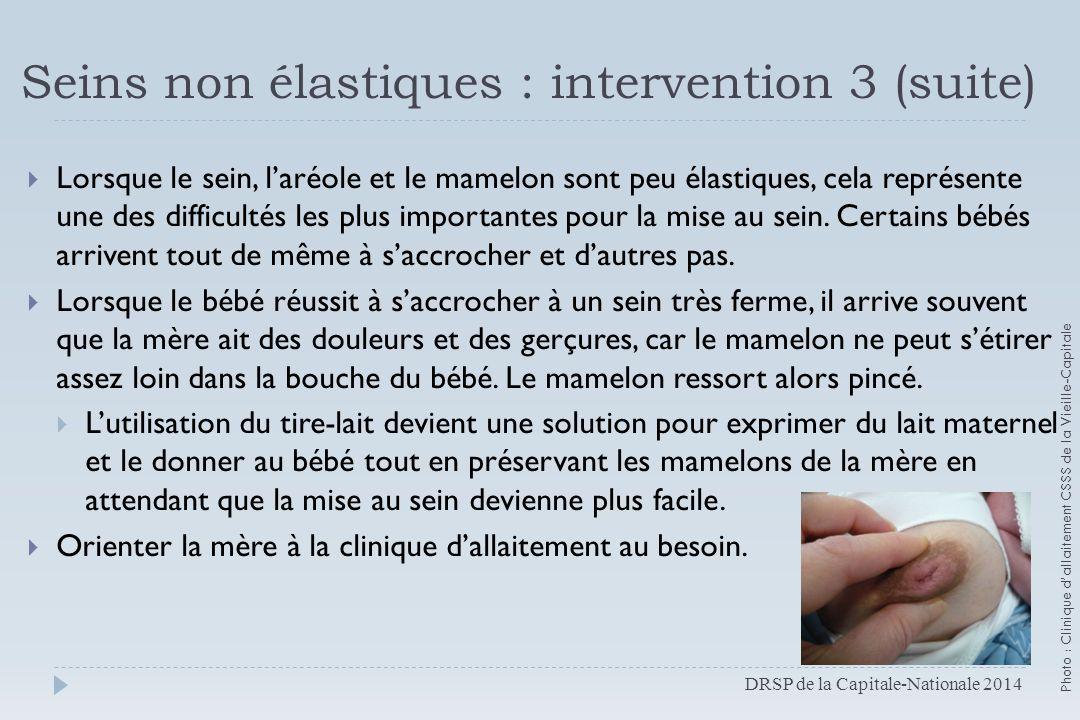 Seins non élastiques : intervention 3 (suite)  Lorsque le sein, l'aréole et le mamelon sont peu élastiques, cela représente une des difficultés les p