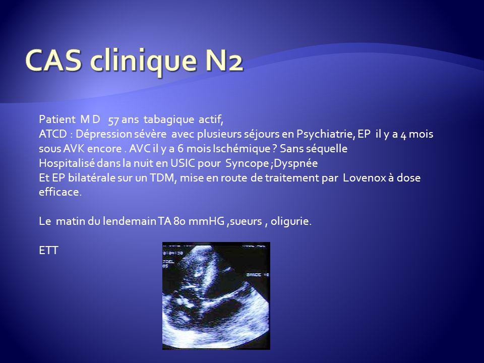 Patient M D 57 ans tabagique actif, ATCD : Dépression sévère avec plusieurs séjours en Psychiatrie, EP il y a 4 mois sous AVK encore.