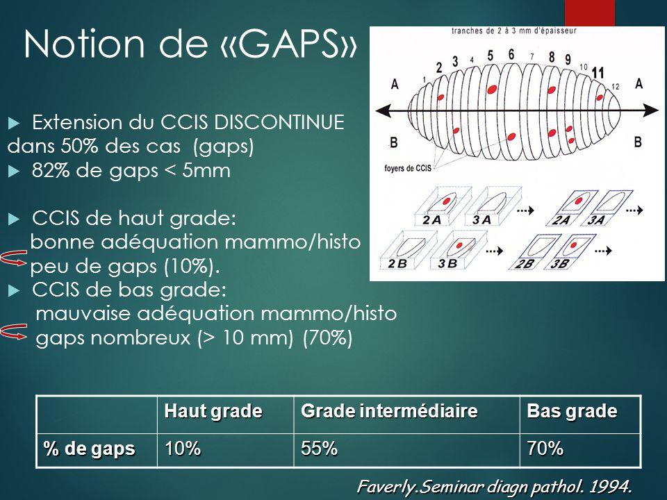 Pronostic CCIS  Lésion in situ : pas de forme métastatique  Pas de bilan d'extension  Pronostic excellent  Survie > 95% à 10 ans  Mais risque de récidive homo-controlatérale  Risque de récidive locale : fonction des marges d'exérèse++  Problème : 50% des récidives sur le mode infiltrant
