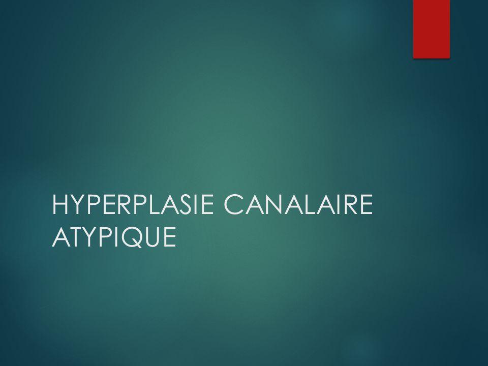 RRHISTOLOGIE (*) 4-5 (élevé) CLIS HLA HCA HA Plane 1.5-3 (modéré) Hyperplasie floride Cicatrice radiaire Adénose sclérosante Papillomes Adénofibrome complexe Blumt duct adenosis Cytologie/atypies 1 (absent) Adénofibrome simple Ectasie Métaplasies Adénose simple Kyste Fibrose Néoplasies lobulaires (*) Certains de ces facteurs sont majorés si ATCD familiaux de cancer du sein.