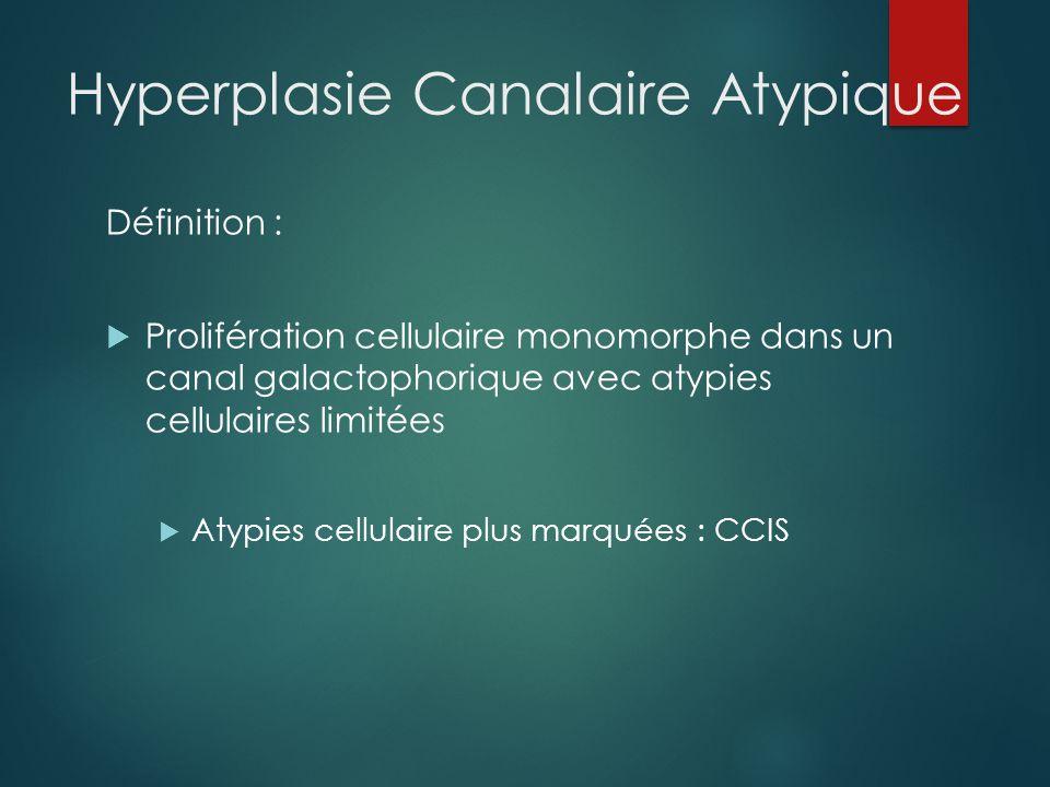 Hyperplasie Canalaire Atypique Sur biopsie  Risque d'association concomitante avec lésion plus péjorative = risque de sous-estimation  CCIS, Carcinome infiltrant :25 à 35% des cas  Exérèse chirurgicale complémentaire indispensable