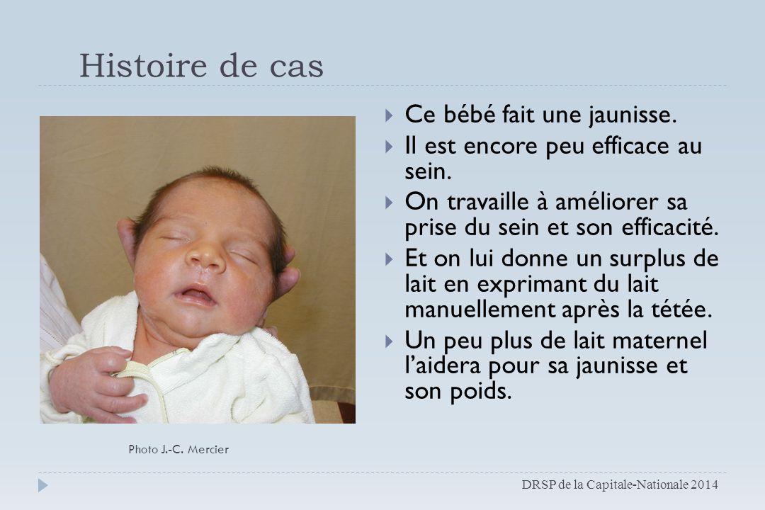 Histoire de cas  Ce bébé fait une jaunisse.  Il est encore peu efficace au sein.  On travaille à améliorer sa prise du sein et son efficacité.  Et