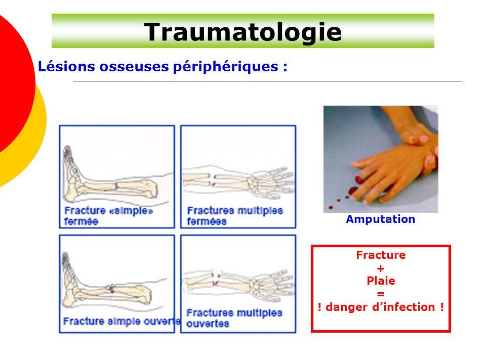 Traumatologie Lésions osseuses périphériques : Fracture + Plaie = ! danger d'infection ! Amputation