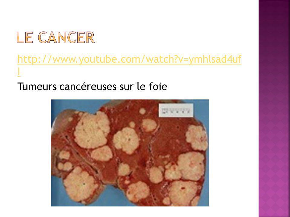 http://www.youtube.com/watch?v=ymhlsad4uf I Tumeurs cancéreuses sur le foie
