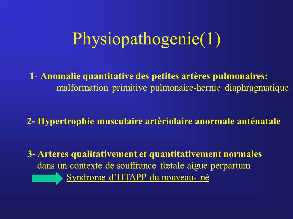 Physiopathogenie(1) 1- Anomalie quantitative des petites artères pulmonaires: malformation primitive pulmonaire-hernie diaphragmatique 2- Hypertrophie
