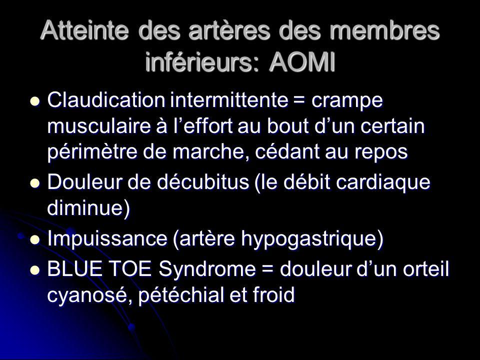 Atteinte des artères des membres inférieurs: AOMI Claudication intermittente = crampe musculaire à l'effort au bout d'un certain périmètre de marche, cédant au repos Claudication intermittente = crampe musculaire à l'effort au bout d'un certain périmètre de marche, cédant au repos Douleur de décubitus (le débit cardiaque diminue) Douleur de décubitus (le débit cardiaque diminue) Impuissance (artère hypogastrique) Impuissance (artère hypogastrique) BLUE TOE Syndrome = douleur d'un orteil cyanosé, pétéchial et froid BLUE TOE Syndrome = douleur d'un orteil cyanosé, pétéchial et froid