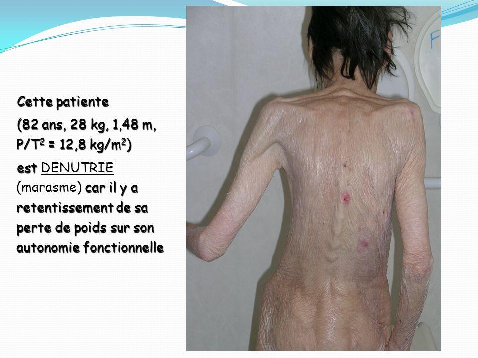 Cette patiente (82 ans, 28 kg, 1,48 m, P/T 2 = 12,8 kg/m 2 ) est car il y a retentissement de sa perte de poids sur son autonomie fonctionnelle est DE