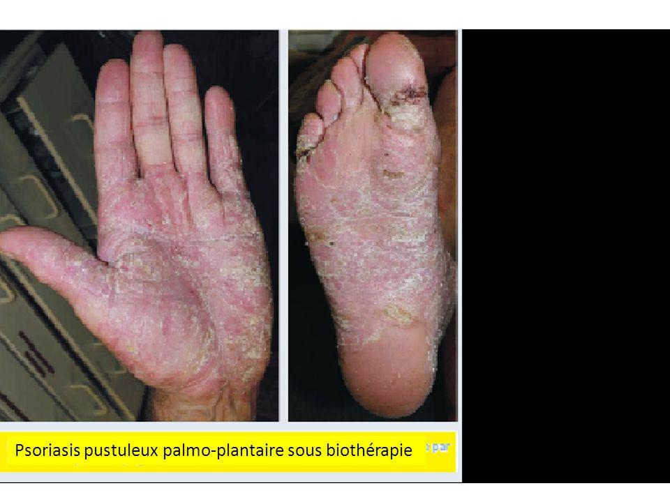 Psoriasis pustuleux palmo-plantaire sous biothérapie