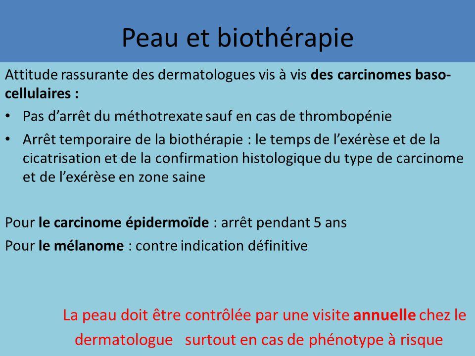 Peau et biothérapie Attitude rassurante des dermatologues vis à vis des carcinomes baso- cellulaires : Pas d'arrêt du méthotrexate sauf en cas de thro