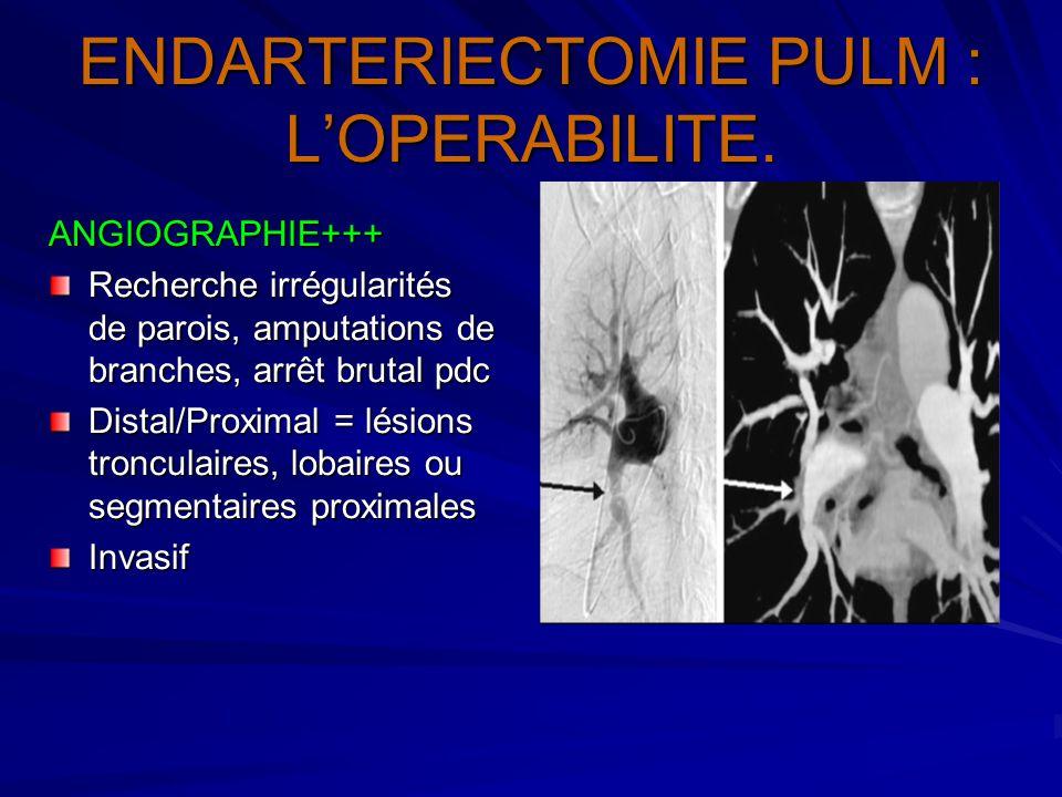 ENDARTERIECTOMIE PULM : L'OPERABILITE. ANGIOGRAPHIE+++ Recherche irrégularités de parois, amputations de branches, arrêt brutal pdc Distal/Proximal =