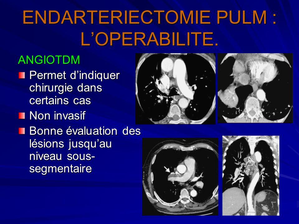 ENDARTERIECTOMIE PULM : L'OPERABILITE. ANGIOTDM Permet d'indiquer chirurgie dans certains cas Non invasif Bonne évaluation des lésions jusqu'au niveau