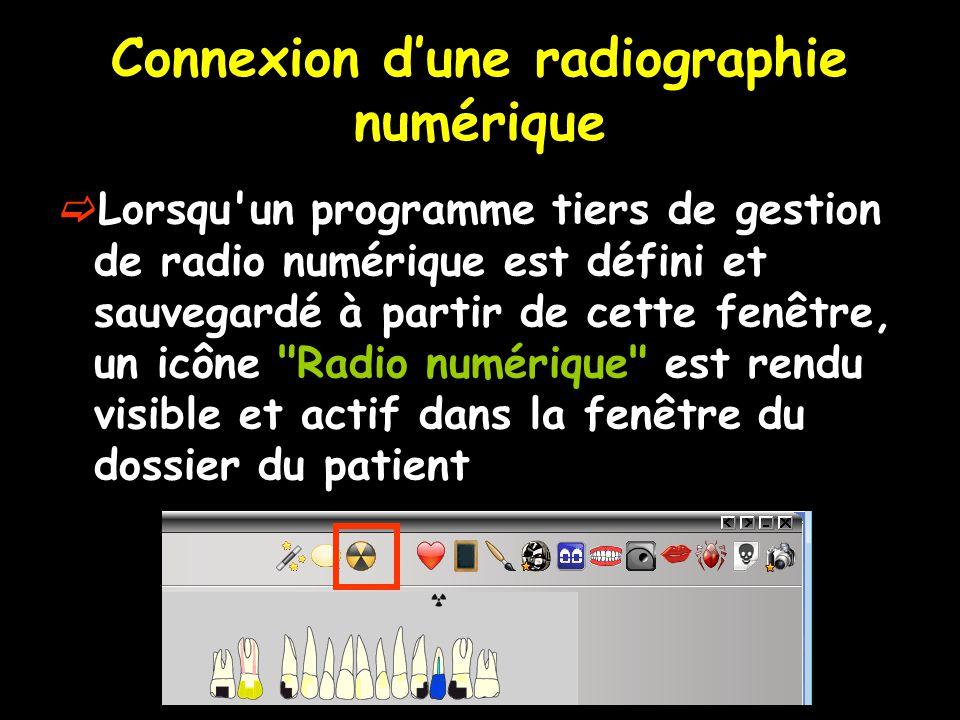 Connexion d'une radiographie numérique  Lorsqu'un programme tiers de gestion de radio numérique est défini et sauvegardé à partir de cette fenêtre, u