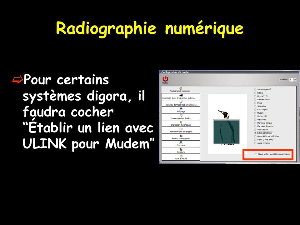 """Radiographie numérique  Pour certains systèmes digora, il faudra cocher """"Établir un lien avec ULINK pour Mudem″"""
