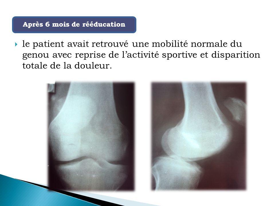  le patient avait retrouvé une mobilité normale du genou avec reprise de l'activité sportive et disparition totale de la douleur.