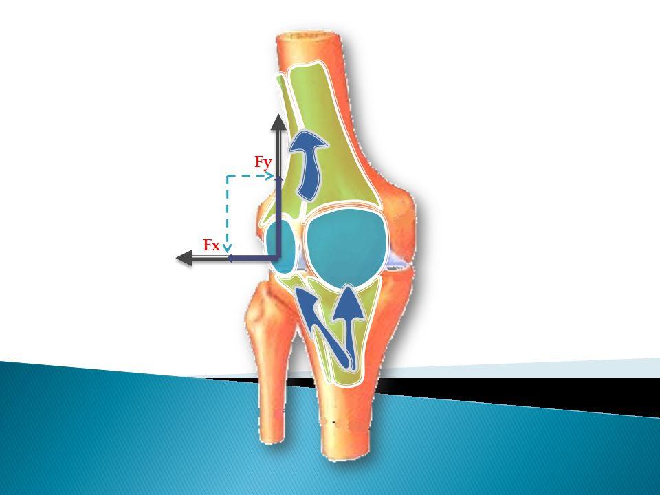  La disparition de la douleur en post opératoire est la plus grande preuve de sa relation directe avec l'existence de la rotule surnuméraire.