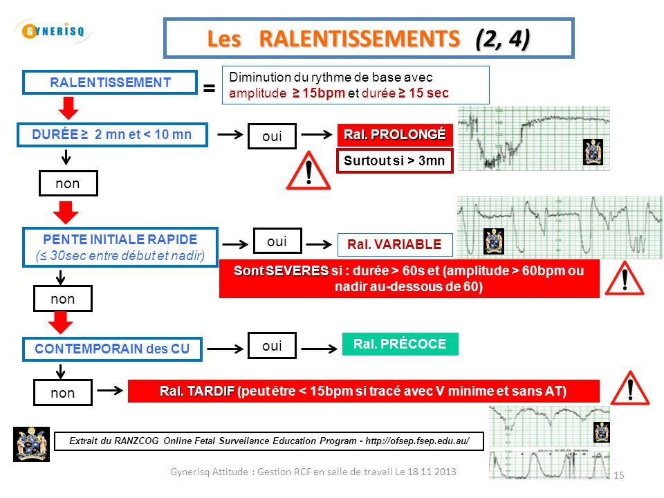 Gynerisq Attitude : Gestion RCF en salle de travail Le 18 11 2013 15 Les RALENTISSEMENTS (2, 4) Diminution du rythme de base avec amplitude ≥ 15bpm et