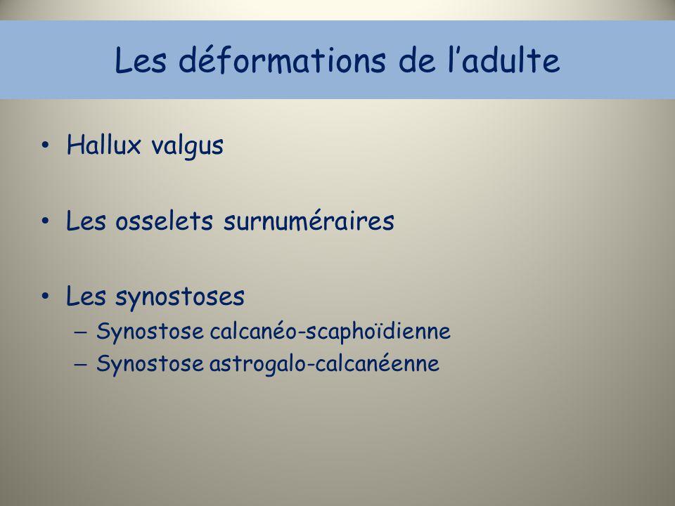 Les déformations de l'adulte Hallux valgus Les osselets surnuméraires Les synostoses – Synostose calcanéo-scaphoïdienne – Synostose astrogalo-calcanée