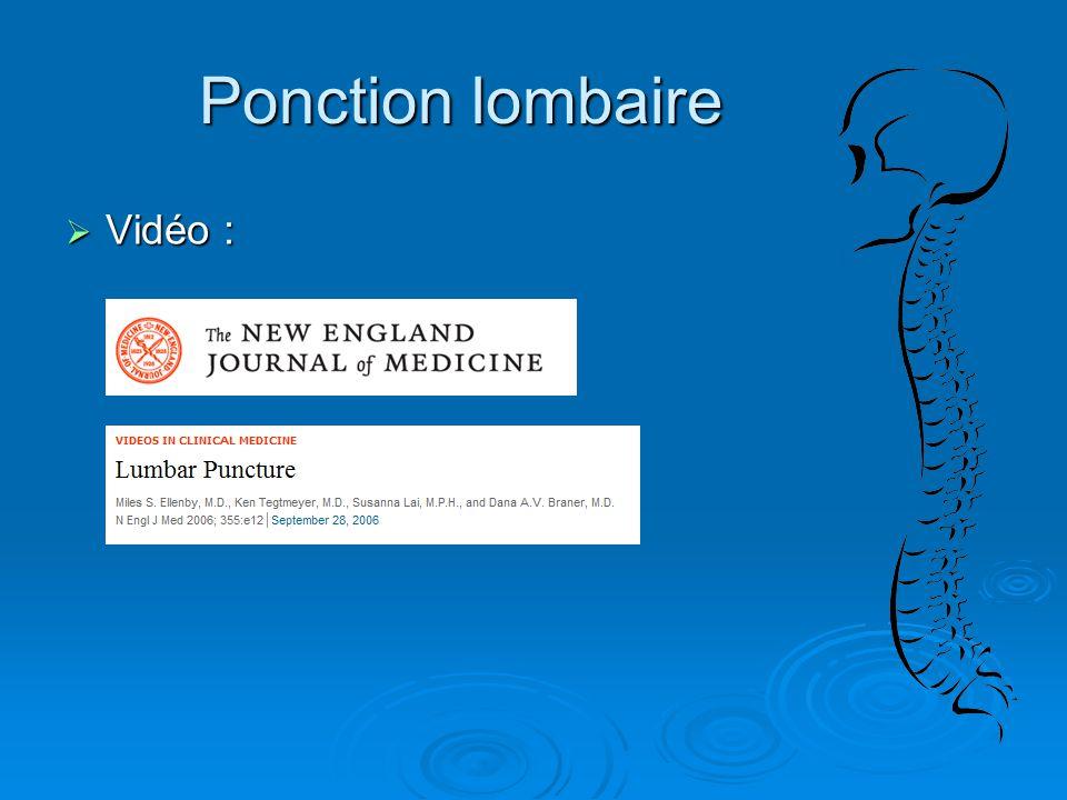 Ponction lombaire  Vidéo :