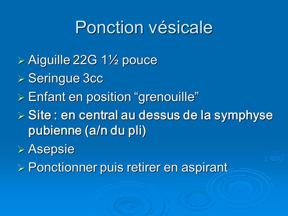 """Ponction vésicale  Aiguille 22G 1½ pouce  Seringue 3cc  Enfant en position """"grenouille""""  Site : en central au dessus de la symphyse pubienne (a/n"""