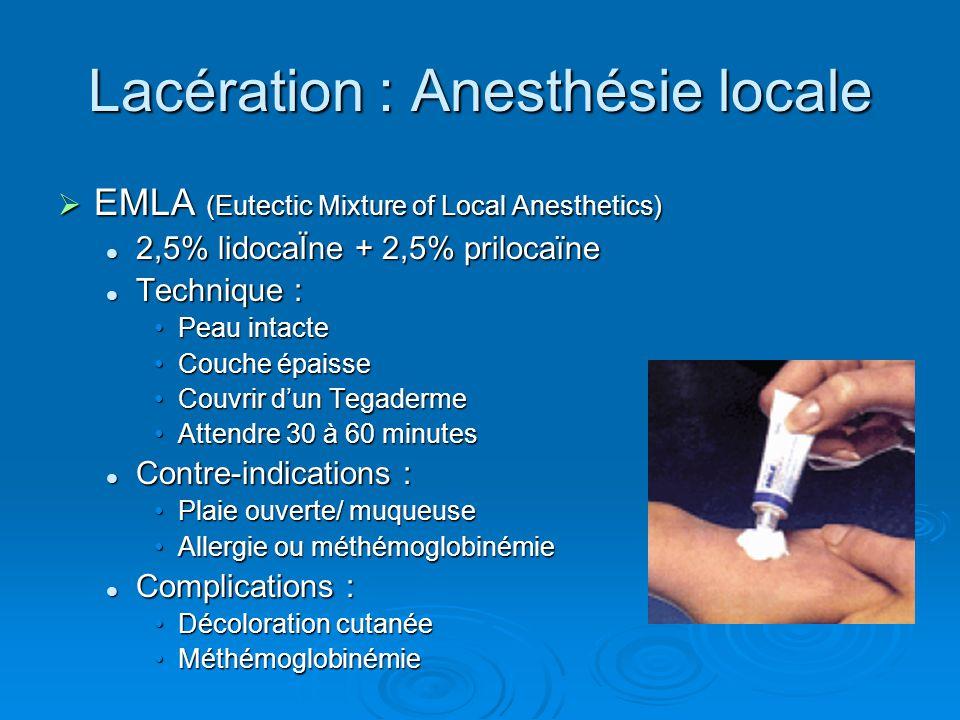 Lacération : Anesthésie locale  EMLA (Eutectic Mixture of Local Anesthetics) 2,5% lidocaÏne + 2,5% prilocaïne 2,5% lidocaÏne + 2,5% prilocaïne Techni