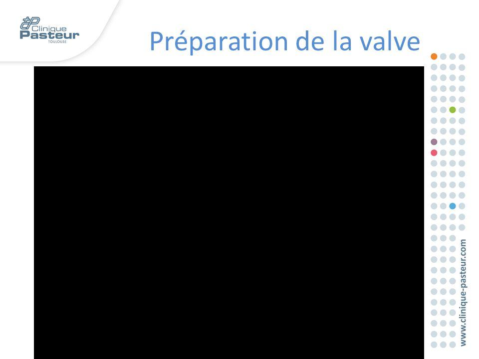 Préparation de la valve