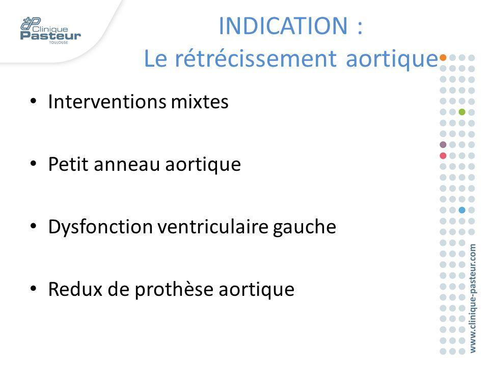 Interventions mixtes Petit anneau aortique Dysfonction ventriculaire gauche Redux de prothèse aortique INDICATION : Le rétrécissement aortique