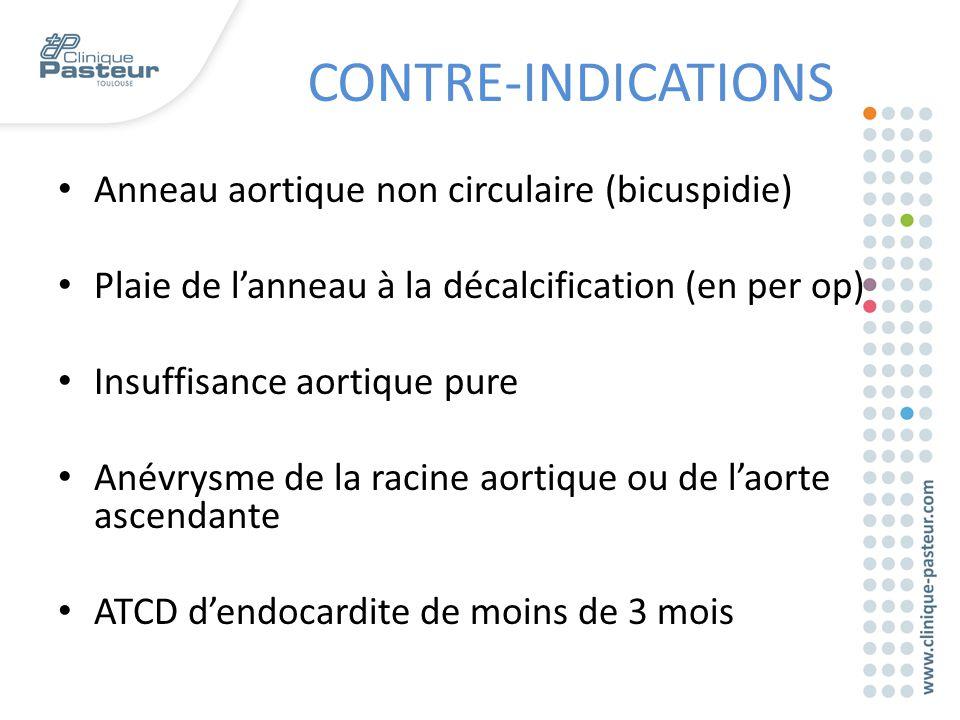 Anneau aortique non circulaire (bicuspidie) Plaie de l'anneau à la décalcification (en per op) Insuffisance aortique pure Anévrysme de la racine aorti