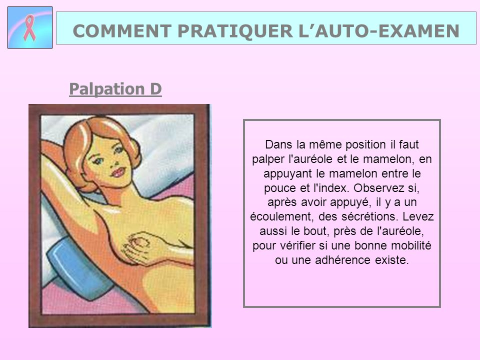 Palpation D Dans la même position il faut palper l'auréole et le mamelon, en appuyant le mamelon entre le pouce et l'index. Observez si, après avoir a
