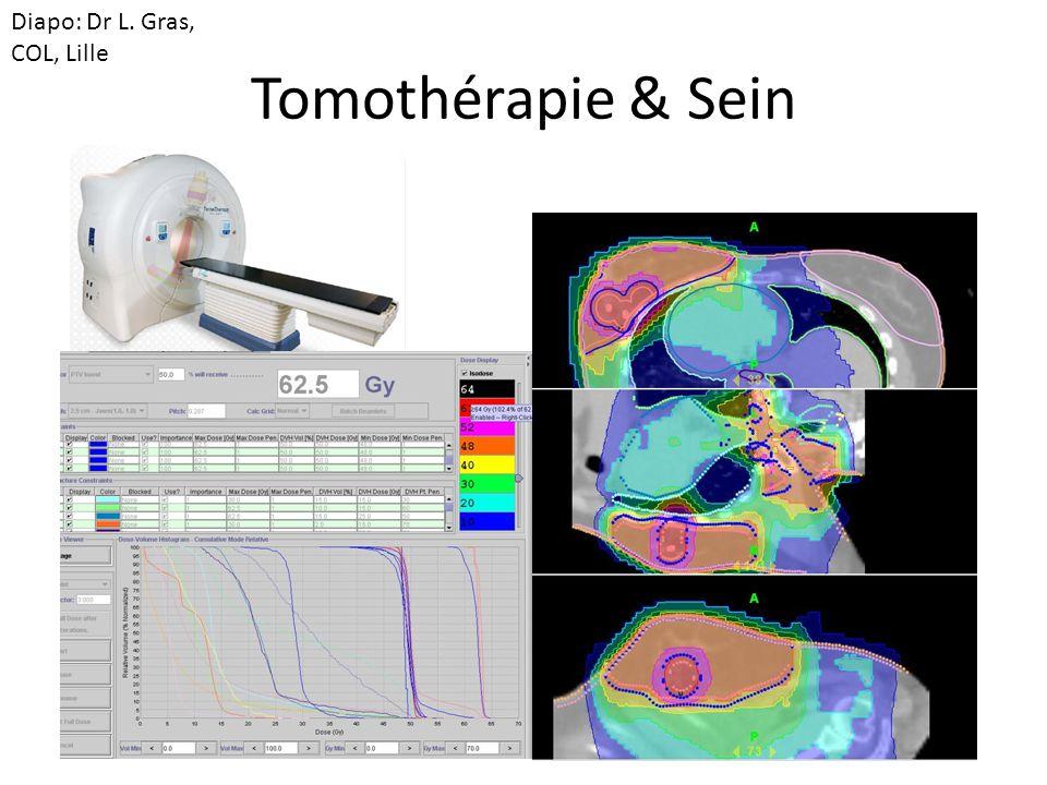 Tomothérapie & Sein Diapo: Dr L. Gras, COL, Lille