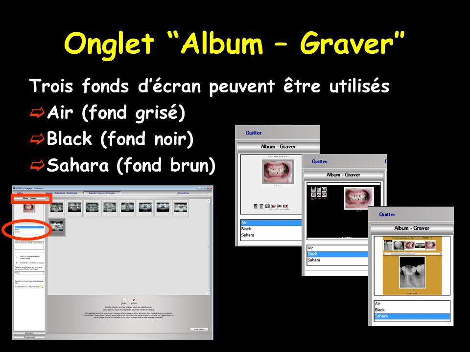 Onglet Album – Graver″ Trois fonds d'écran peuvent être utilisés  Air (fond grisé)  Black (fond noir)  Sahara (fond brun)