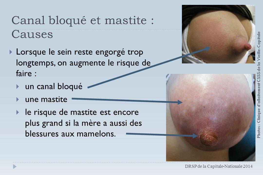 Canal bloqué et mastite : Causes  Lorsque le sein reste engorgé trop longtemps, on augmente le risque de faire :  un canal bloqué  une mastite  le