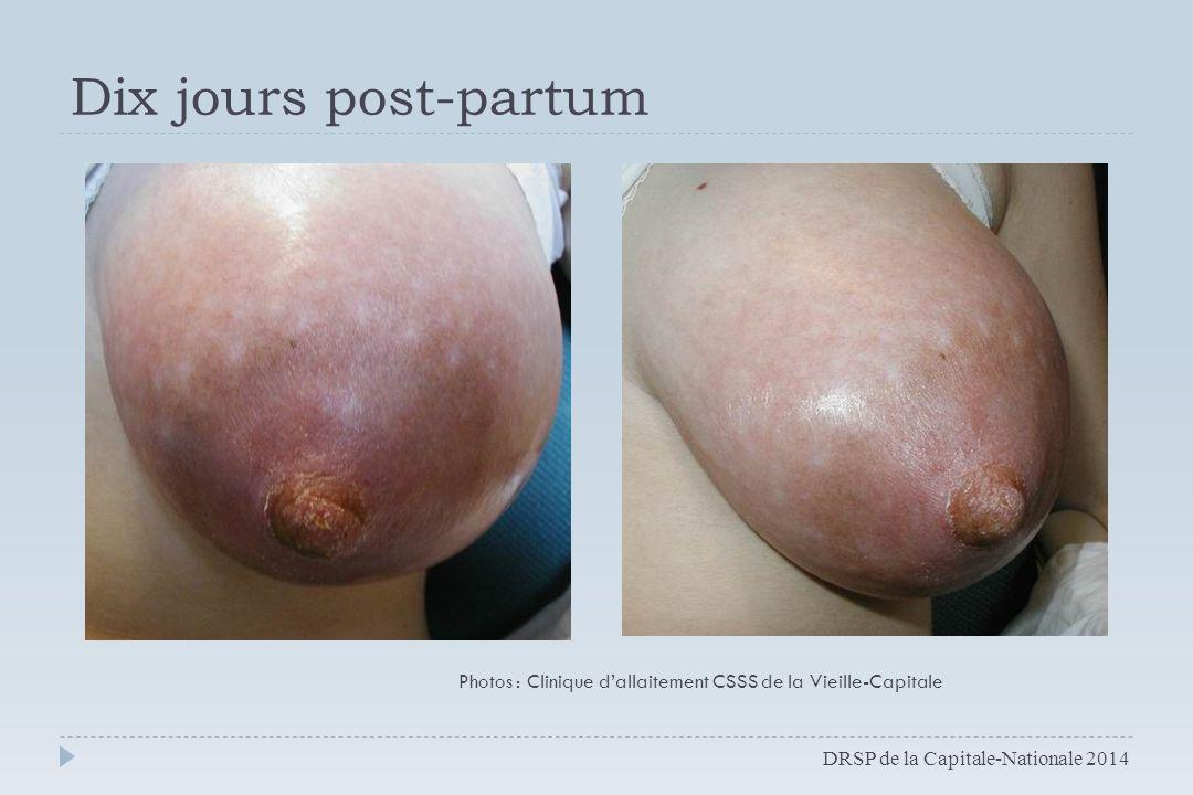 Dix jours post-partum DRSP de la Capitale-Nationale 2014 Photos : Clinique d'allaitement CSSS de la Vieille-Capitale