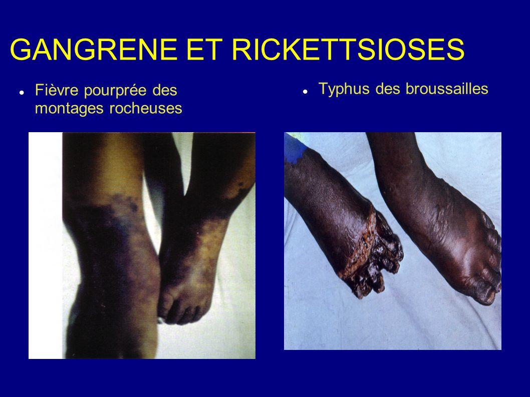 GANGRENE ET RICKETTSIOSES Fièvre pourprée des montages rocheuses Typhus des broussailles