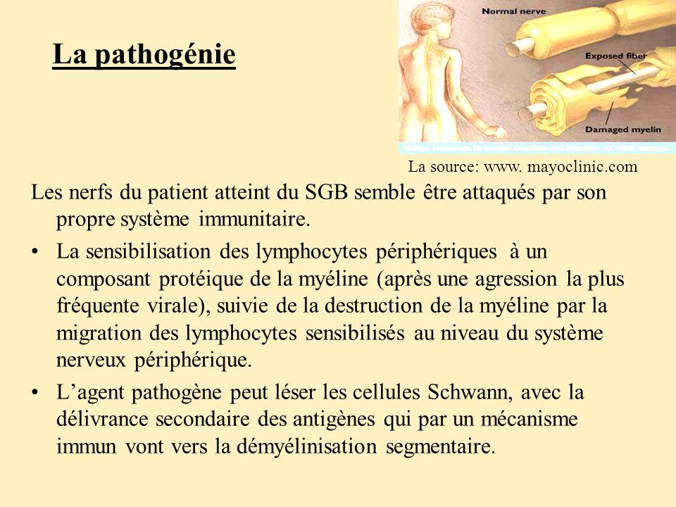 La pathogénie Les nerfs du patient atteint du SGB semble être attaqués par son propre système immunitaire.